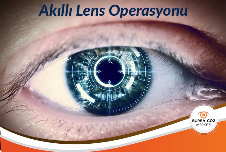 Akıllı Lens Operasyonu Nedir? Nasıl Uygulanır?
